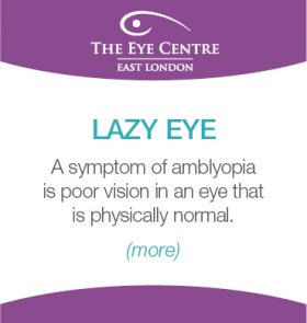 Eye Centre Eye Condition Thumbnails11