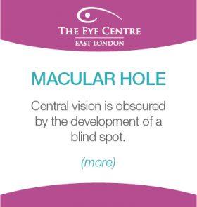Eye Centre Eye Condition Thumbnails13