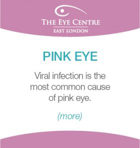 Eye Centre Eye Condition Thumbnails14