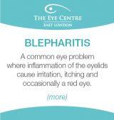 Eye Centre Eye Condition Thumbnails2