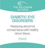 Eye Centre Eye Condition Thumbnails6