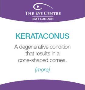 Eye Centre Eye Condition Thumbnails9